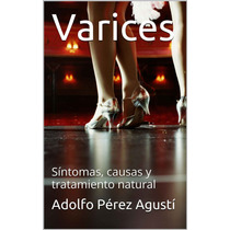 Varices: Síntomas, Causas Y Tratamiento Natural - Libro Dig