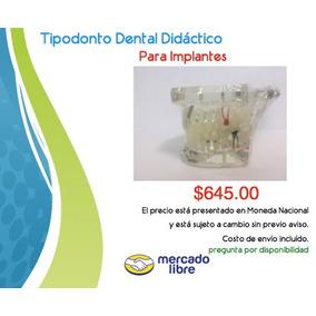 Tipodonto Dental Didáctico Para Implantes