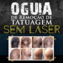 O Guia De Remoção De Tatuagem Sem Laser