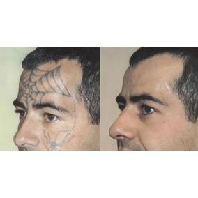 Como Remover Tatuagem Em Casa Sem Laser E Sem Dor