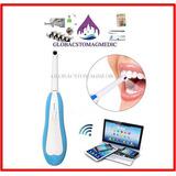 Camara Intraoral Dental Inalambrica (wifi)