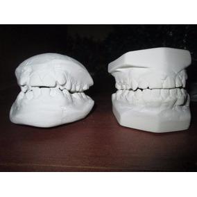 Modelos Dentales. Antes - Después. Para Dentistas