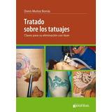 Tratado Sobre Tatuajes, Eliminación Con Láser Novedad Libro