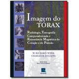 Imagem Do Torax - Radiologia, Tc, Rm Do Coracao
