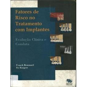 - Fatores De Risco No Tratamento Com Implantes
