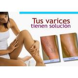 Elimina Las Varices Sin Cirugia + Bonus (digital)