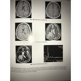 Libro Resonancia Magnetica Atlas Practico