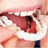 Snap On Smile Sorriso Perfeito Entrega Rápida Dentes Postiço