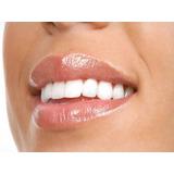 Implante Dental + Corona De Porcelana. Precio Final!