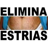 Elimina Estrias Nuevas O Viejas En 8 Semanas 100% Efectivo.