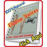 Guia Destructora De Varices - Jose Del Campo Pdf + Bonos