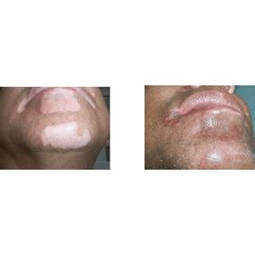 Vitiligo Micropigmentación