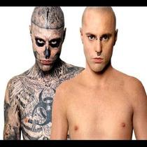 Ebook Ensina Como Remover Tatuagem Sem O Uso De Laser
