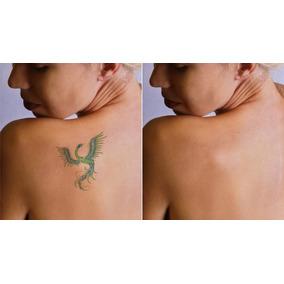 Guia De Remoção De Tatuagens, Sem Dor E Sem Laser