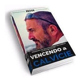 Livro Vencendo A Calvície - Ebook + Vaga No Grupo