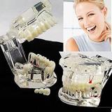 2017 Nuevo Implante Dental Enfermedad Dientes Modelo...