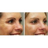 Melhorq Botox Creme Facial Ruga Efeito Toxina Botulínica D+n