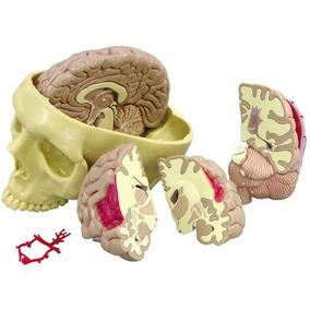Modelo Cerebro Enfermo En El Cráneo