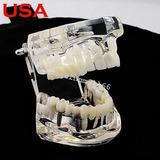 Los E.e.u.u. Dentista Implantes Dentales Enfermedad Dientes