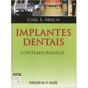 E-book Implantes Dentais Contemporâneos Carl E Misch - 3ªed
