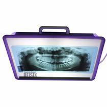 Negatoscopio Dental Panorámico Con Lámpara Ahorradora