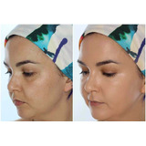 Base Maquillaje Dermacol Alta Cobertura 6 Tonos Envio Gratis