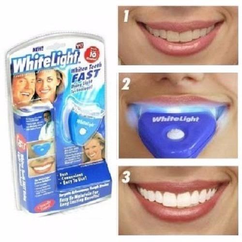 Kit Clareamento Dental A Pronta Entrega R 41 90 Em Mercado Livre