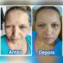 Instantly Ageless, Botox Instantâneo, Rejuvenescedor Facial