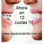 Ortodoncia Lingual En 12 Cuotas!!! 011- 4662-2689