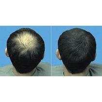 Pelo En Polvo,bote De 56 Grs. ,cubre Calvicie , Alopecia