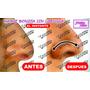 Corrector Nasal Nariz Bonita / Pretty Nouse Pack De 8 Pares