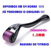 Dermaroller 1.5 Mm - 540 Agulhas Anvisa No.80213730012