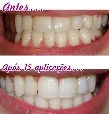 Clareador De Dentes Branco Caneta Clarear Branqueadora Pen R 60