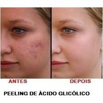 Tira Manchas Acido Glicólico 6% Hinode + Frete Gratis!!