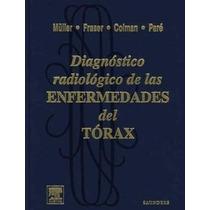 Diagnóstico Radiológico De Las Enfermedades Del Tórax