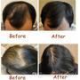 Vitamina Americana Evita Caída Cabello Tratamiento Alopecia