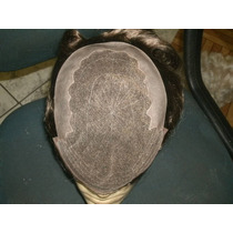 Prótese Capilar Lace Francesa - Direto Do Fabricante