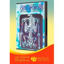 Guía Práctica Osteoporosis Prevención Y Detección