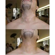 Tratamiento Para Eliminar El Vitiligo