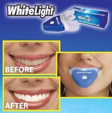 Clareador Dental Gel White Light Clareamento Dentes Brancos R
