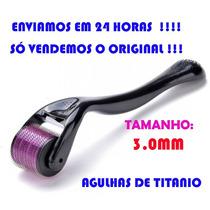 Dermaroller 3.0 Mm - 540 Agulhas Anvisa No.80213730012
