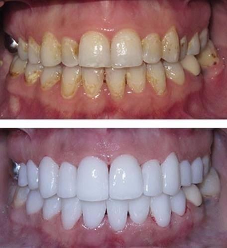 Kit Clareamento Dental Gel Clareador 44 32 Ou 22 R 39 99 Em