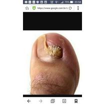Nata de um fungo de pernas de uma foto