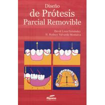 Diseño De Prótesis Parcial Removible Pdf