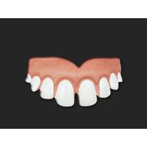 Dentadura Falsa Dentão, Dentuço, Ronaldinho - Frete R$ 8,50