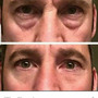 Ageless El Botox Instantaneo! 10 Sobres O Mas