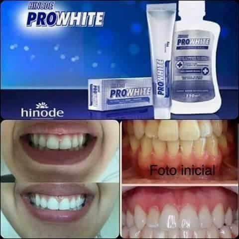 Gel Dental Hinode Clareador Dental R 12 00 Em Mercado Livre