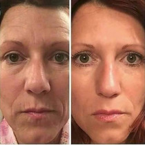 Creme Ageless Lift Derm Dr Rey Face And Body+brinde +frete