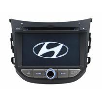 Central Multimidia Kit Hyundai Hb20 Hb20s Frete Grátis C/tv