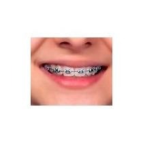 Aparelho Ortodontico + Cola Para 20 Peças+fio+borrachinha